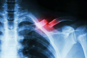 Symmetry-Physiotherapy-Fractured-Clavicle