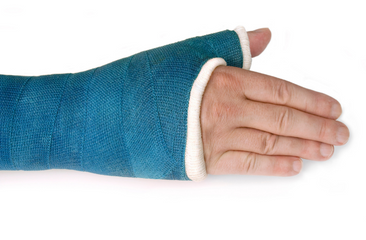 symmetry_physio_wrist_fracture